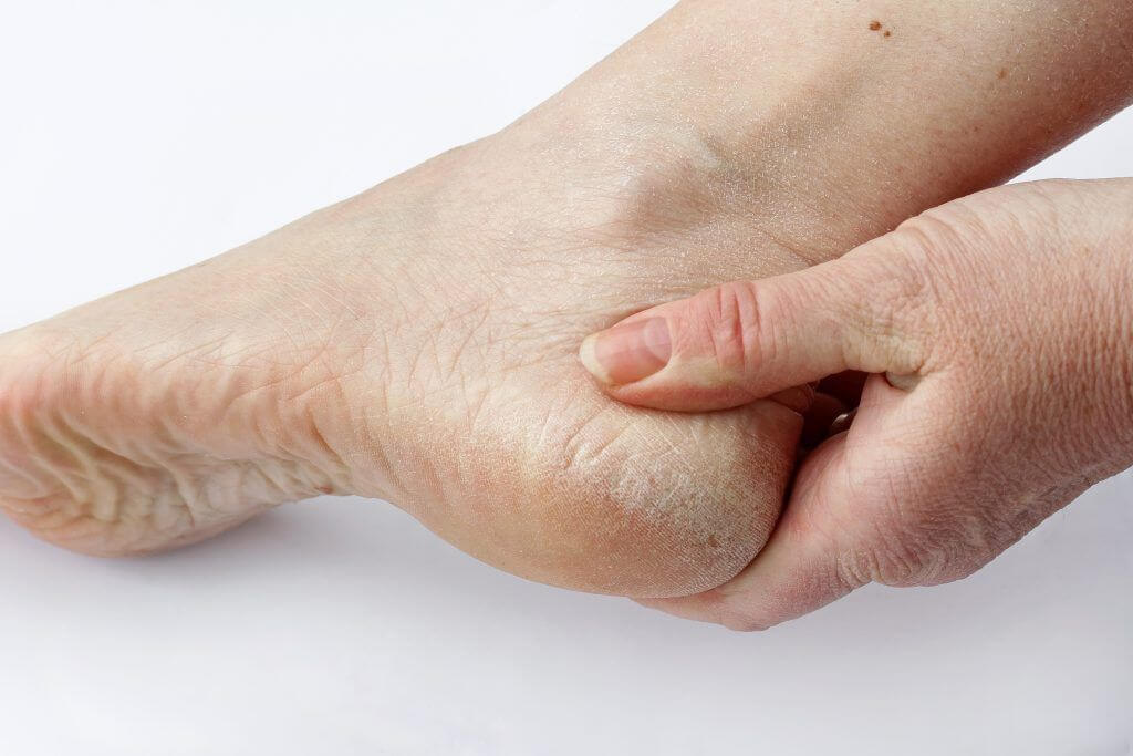 Dry Skin and Foot Problems