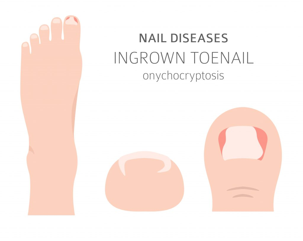 Ingrown Toenail: Remedies, When to See Your Foot Doctor, and More